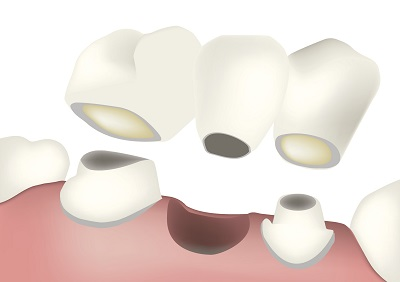 Diagram of a dental bridge from dentist office in Dundee, MI.