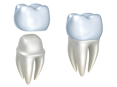 Dental Crowns by dentist in Dundee, MI.