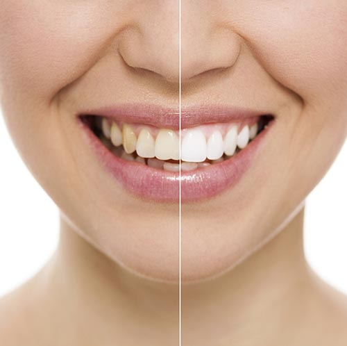 Teeth Whitening at Tower Dental